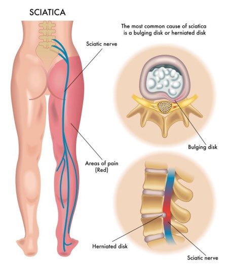diagram explaining common causes of sciatica